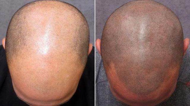 Attention Men with Thinning Hair - Houston