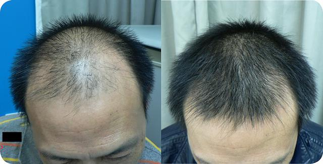 prp stem cell treatment  for hair rs 3000 session